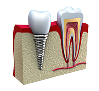 Dental Implant - dentist prescott valley, az