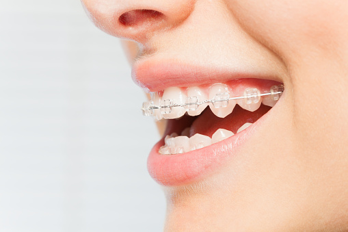 Does a Small Gap Between Your Teeth Actually Hurt Your Mouth?