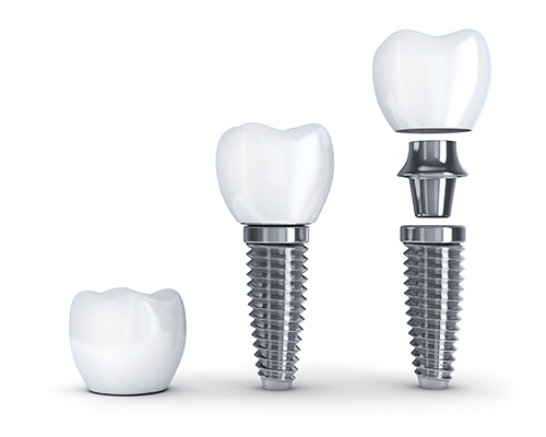 Diagram of the components in a dental implant