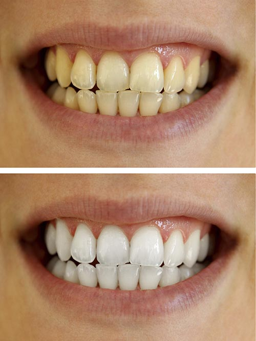 A before and after picture of a patients smile using a whitening kit.