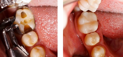 Before and after photo of dental fillings - Dentist Prescott Valley, AZ